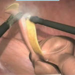 appendixentfernen 150x150 E Learning für Mediziner